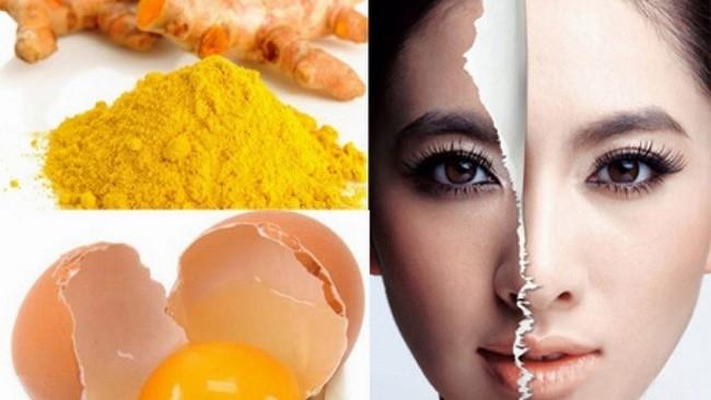 Cách đắp mặt nạ trứng gà và nghệ trị mụn hiệu quả tại nhà